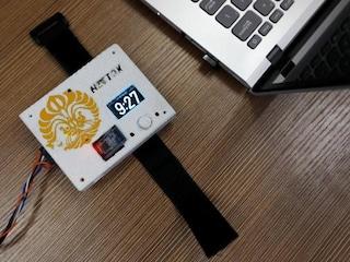 Questo gadget misura l'ossigeno nel sangue per avvertire quando è ora di spegnere lo smartphone