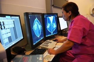 Questa intelligenza artificiale individua i tumori al seno meglio del radiologo