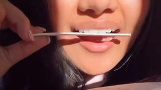 Alcuni utenti di TikTok hanno iniziato a limarsi i denti da soli: l'allarme dei dentisti