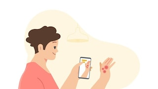 Quest'app ti dirà se potresti avere un tumore della pelle