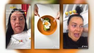 Prova a cucinare le uova con un trucco visto su TikTok ma si ustiona il volto