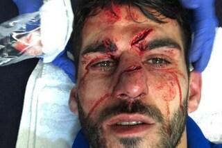 Inghilterra, Mings calpesta Oliveira: il portoghese esce dal campo con la faccia sfigurata