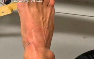 Infortunio Neymar, le ultime notizie sulle condizioni