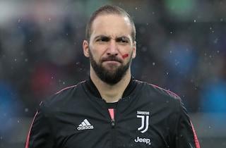 Perché c'è un segno rosso sulla faccia dei calciatori: no alla violenza sulle donne